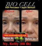 biocell kulit kering