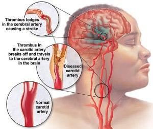 pemulihan stroke