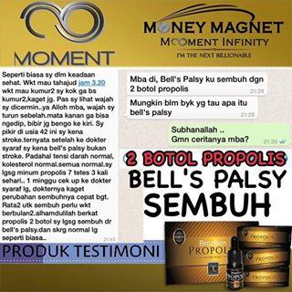 obat Bell's Palsy