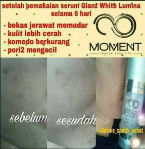 testi-white-lumina-7