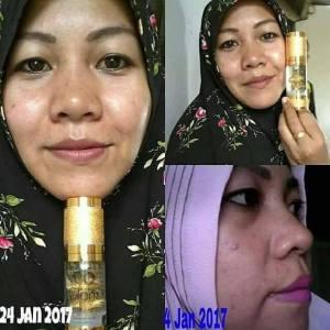 testi white lumina dan gold juvena (1)