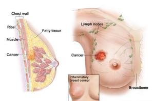Cara Menyembuhkan Tumor Benjolan Dan Kista Payudara Tanpa Operasi