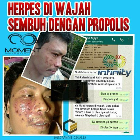 propolis moment obati herpes (4)