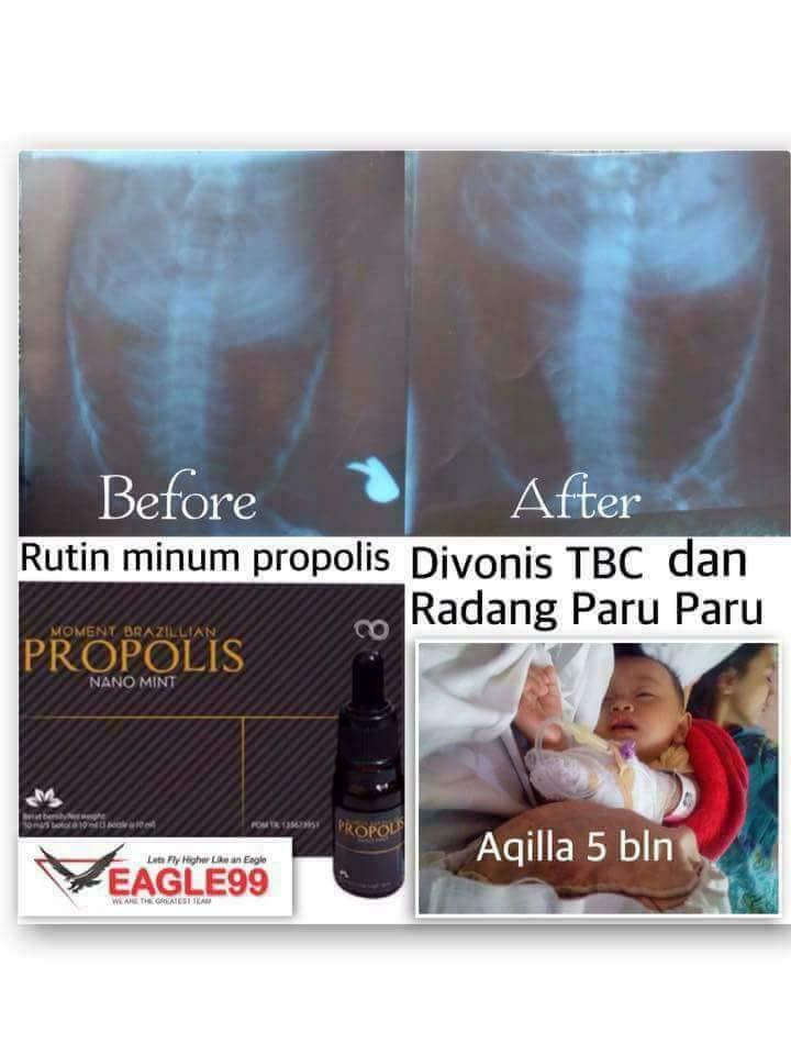 Flek Infeksi Radang Paru-Paru